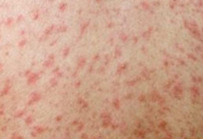 В Тульской области зафиксировано 13 случаев заболеваний корью