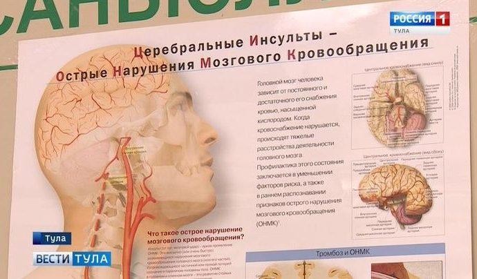 Невролог Тульской облбольницы рассказала о методах лечения инсульта