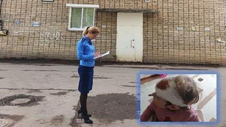 В Щекине упавший с дома камень разбил голову ребенку: прокуратура начала проверку
