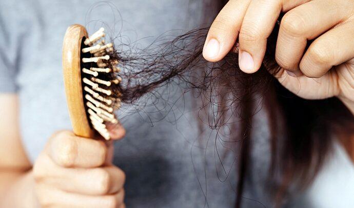 Выпадение волос, облысение